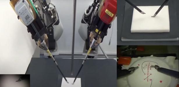 O robô faz uma maratona de vídeos de médicos e aprende a dar um ponto cirúrgico - 21.06.2020