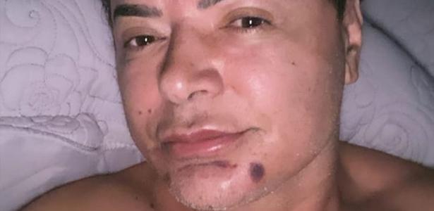 David Brazil mostra recuperação do procedimento estético: 'Boca linda' - 02.07.2020